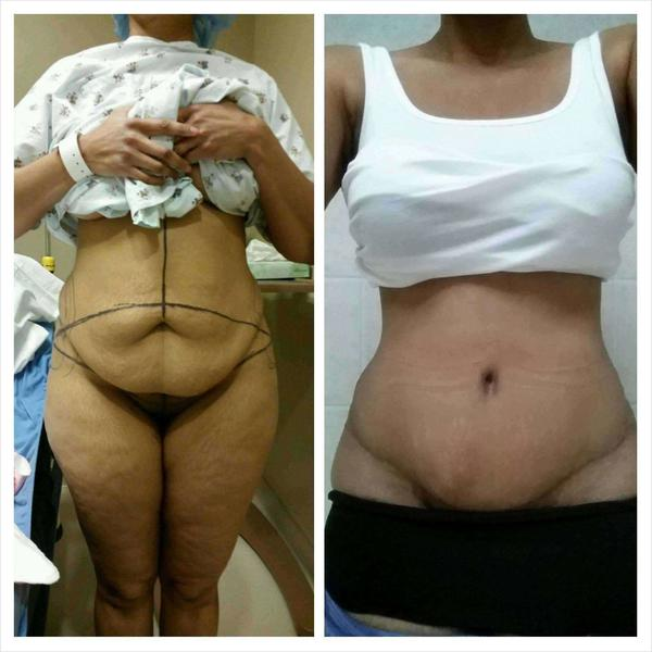 Compression garments after tummy tuck