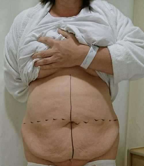 Before Tummy Tuck Markings 187 Tummy Tuck Prices Photos