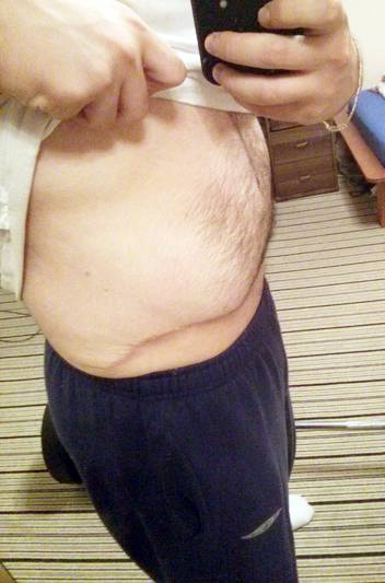 Male tummy tuck scar photo