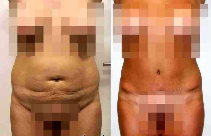 Tummy tuck for men before and after