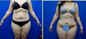 Tummy tuck surgery photos before and after