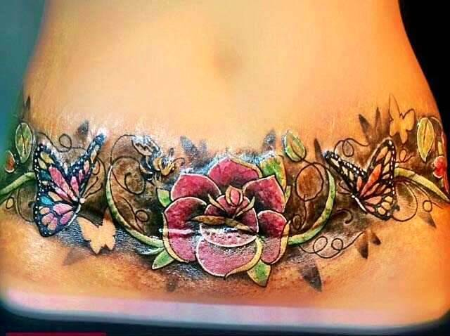 Tattoos To Cover Tummy Tuck Scar » Tummy tuck information: prices ...