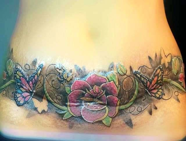 Tummy tuck tattoos 5 tummy tuck information prices for Tummy tuck cover tattoos