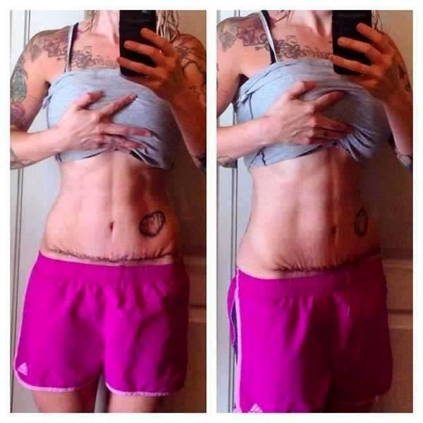 Lose weight naturally fast image 2