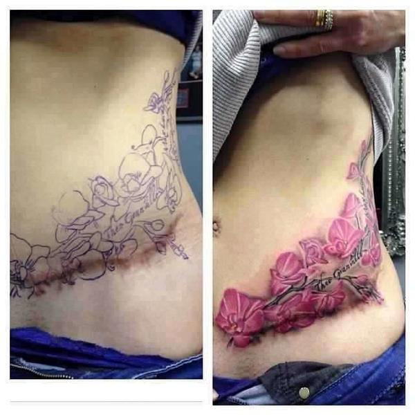 Tattoo Cover Up Keloid Scars Pret A Taux Zero