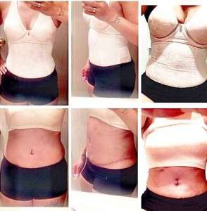 Before and after tummy tuck in Kansas city