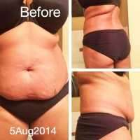 Before tummy tuck Baton Rouge