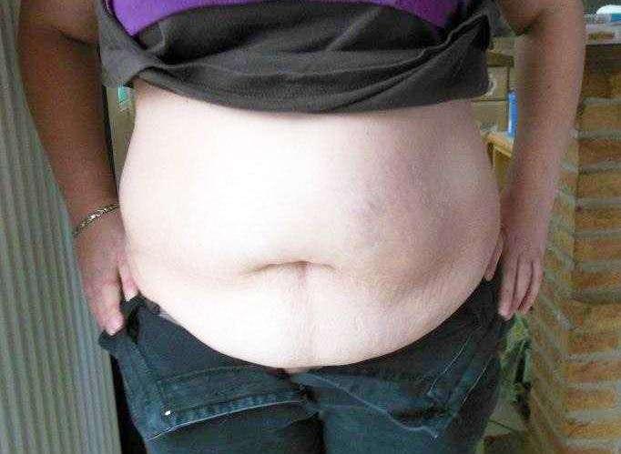 Medical reason for tummy tuck surgery