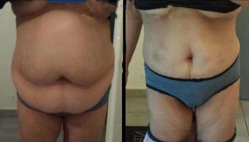 Before and after tummy tuck in Orlando, Fl
