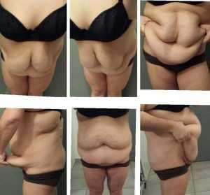 Before tummy tuck in Orlando, Fl
