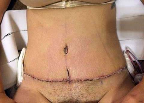 A Tummy Tuck Surgery Scar Pictures 187 Tummy Tuck