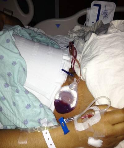 drains after tummy tuck abdominoplasty surgery tummy