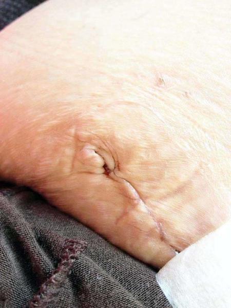 Tummy tuck scar fair skin