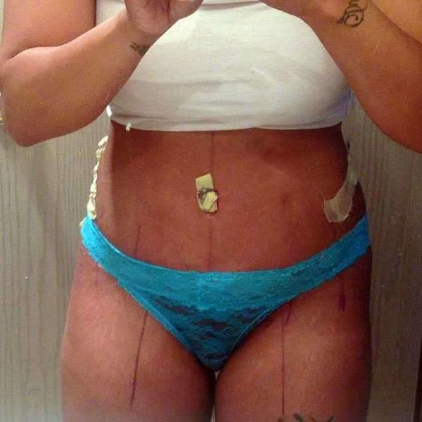 Vagina Swelling After Tummy Tuck? Doctor Answers, Tips