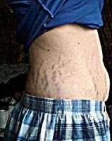 Will A Tummy Tuck Remove Stretch Marks Photo