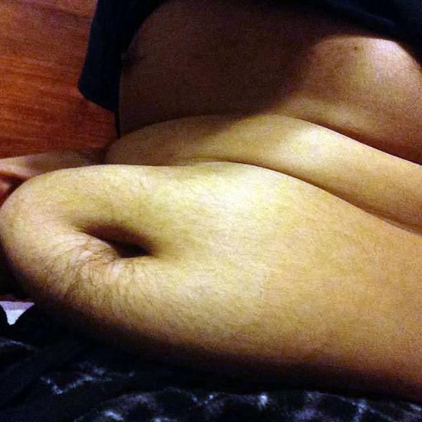 Visceral Fat Surgery 77