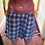 Full tummy tuck before and after photos (23)