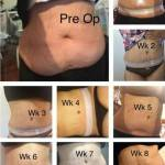 Tummy tuck before and after pics and pictures