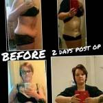 Tummy tuck before and after pics board surgeons