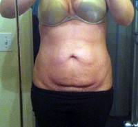 Tummy tuck scars photos image before