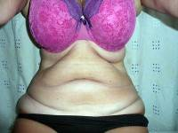 Tummy tuck with liposuction before and after image