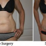 Standard tummy tuck pictures Florida best cosmetic surgeons