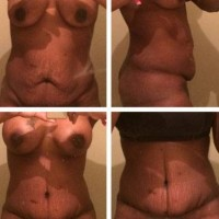 Before and after tummy tuck very low incision photo