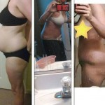 Image abdominoplasty candidate after and before