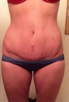 Pic of abdominoplasty low incision  surgery image