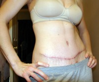 A tummy tuck is possible in a diabetic