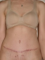 type II diabetic and abdominoplasty