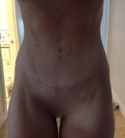 post liposuction skin tightening