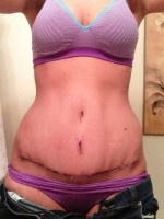 Umbilicoplasty as Part of Tummy Tuck