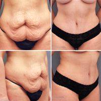 Before And After DrainLess Abdominoplasty