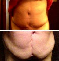 Doctor Mark Edinburg Before And AfterTummy Tuck