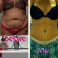 Dr Steve Merten Tummy Tuck Before And After