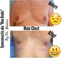 Gynecomastia Treatment Before After